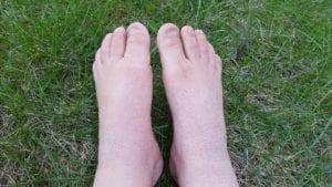 Dry eczema feet